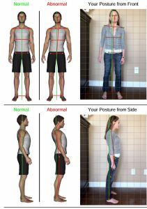 posture-screen-analysis
