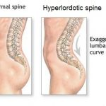 Do you have hyperlordosis causing back pain?
